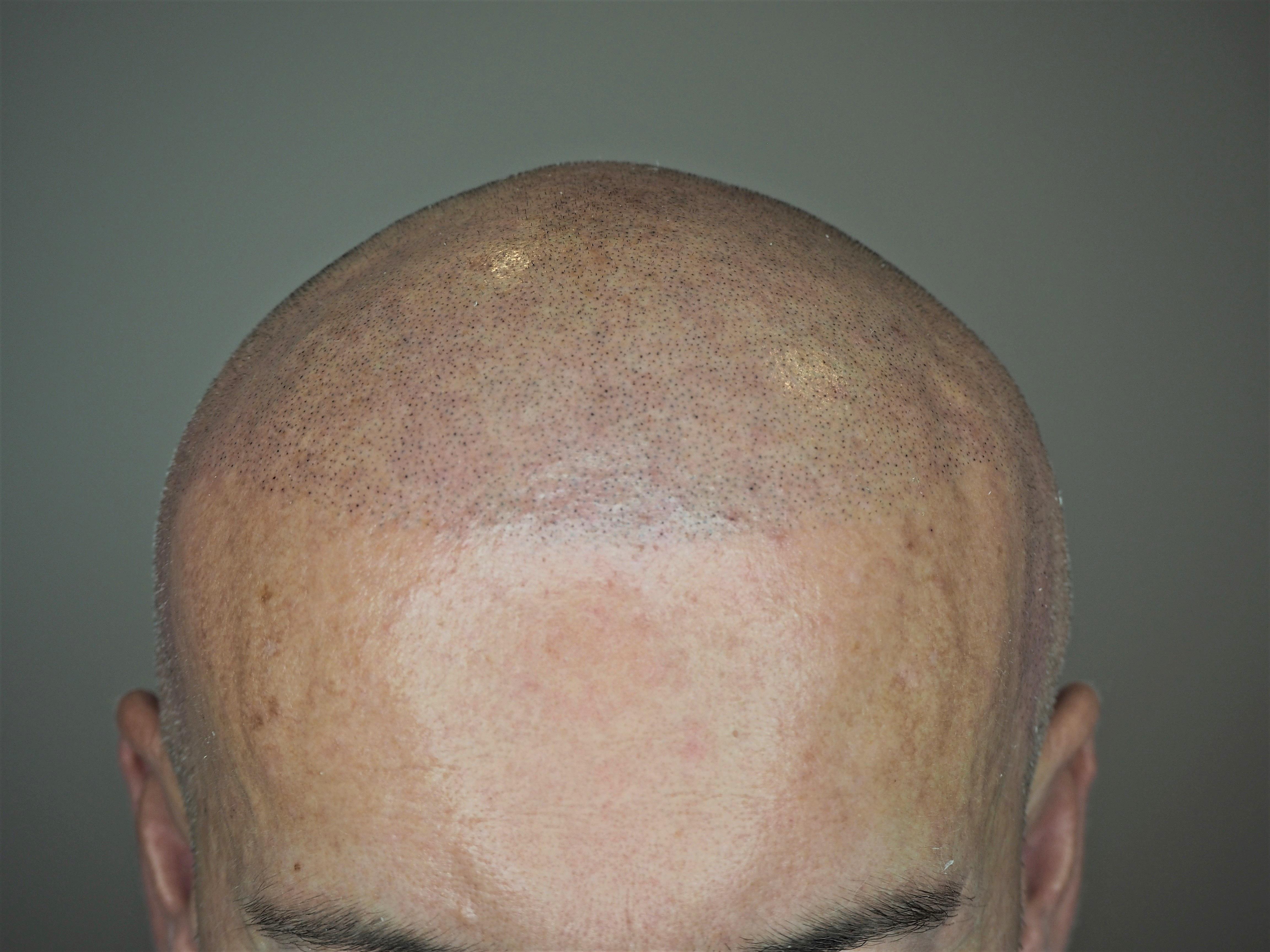 Na czym polega mikropigmentacja skóry głowy? Kiedy można ją zastosować?