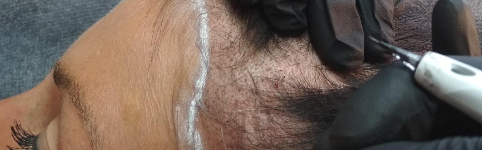 Mikropigmentacja skóry głowy – skuteczny sposób na łysienie