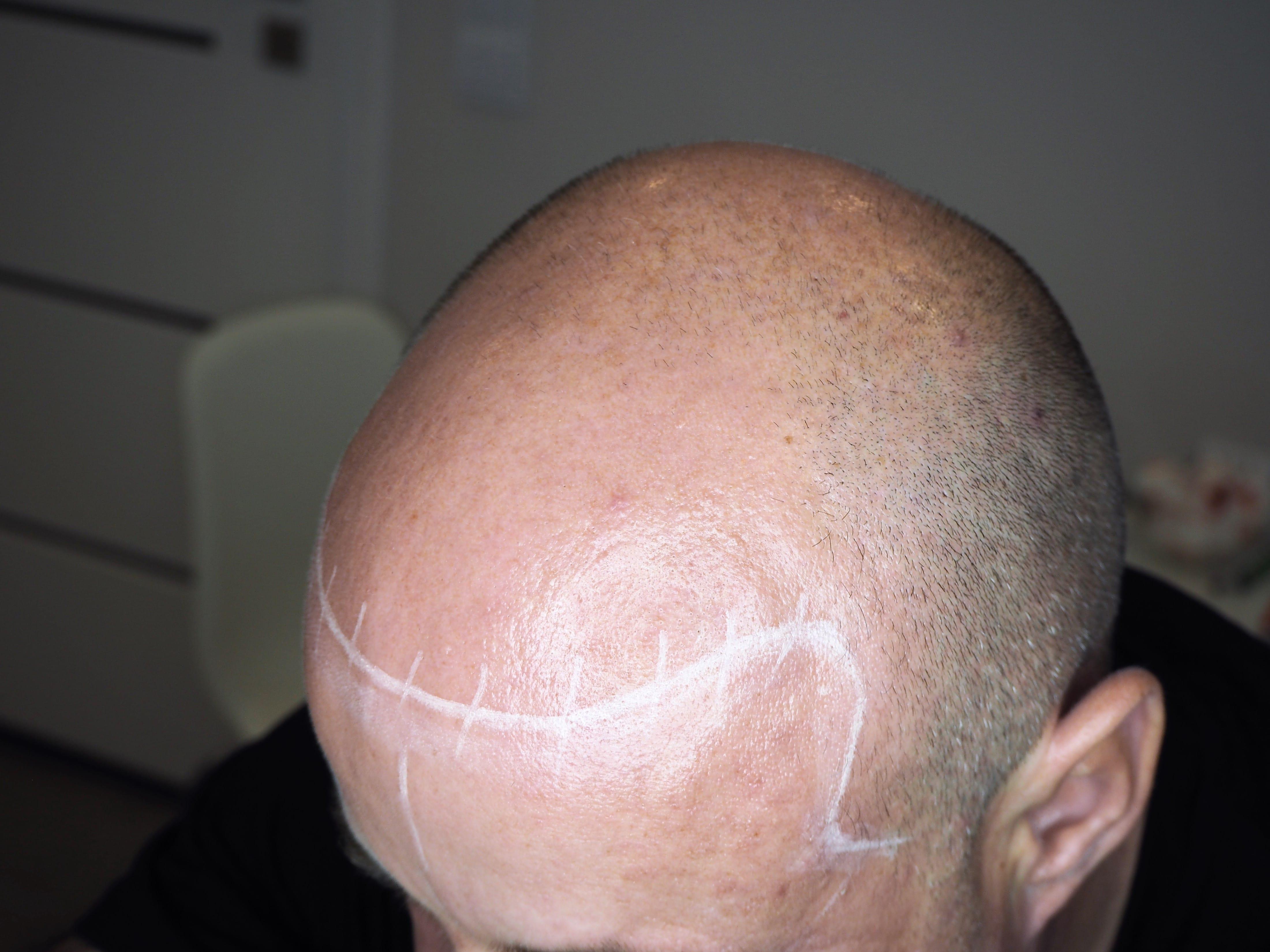 przykład naturalnej linii włosów - przed zabiegiem