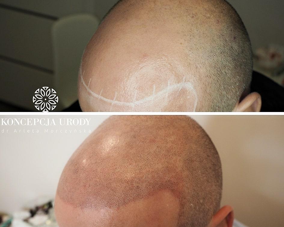 mikropigmentacja skóry głowy - efekt ogolonych włosów