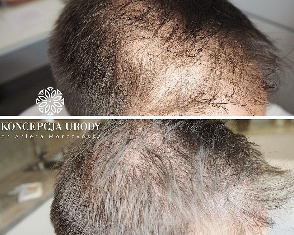 mikropigmentacja skóry głowy - zagęszczenie włosów