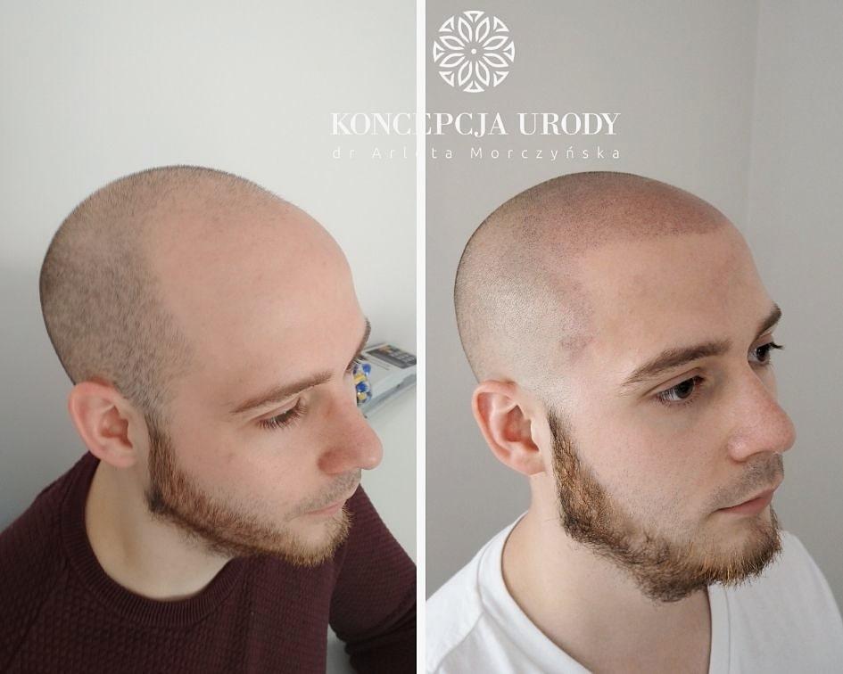 Mikropigmentacja skóry głowy- efekt po drugim zabiegu