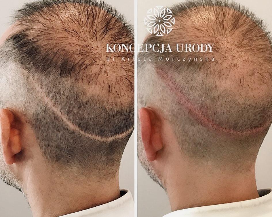Mikropigmentacja blizny po przeszczepie włosów- efekt po pierwszym zabiegu
