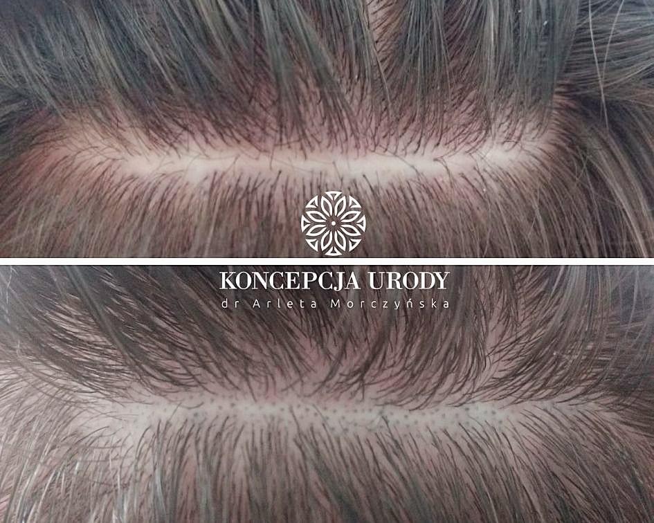 Mikropigmenactacja blizny na głowie- efekt wygojony po pierwszym zabiegu