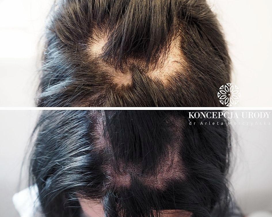 Mikropigmentacja blizn na głowie- efekt po pierwszym zabiegu