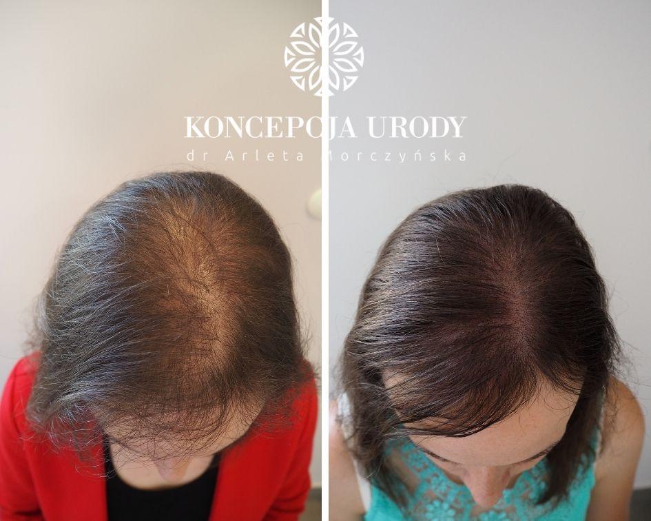 Mikropigmentacja skóry głowy- zagęszczenie włosów po dwóch zabiegach
