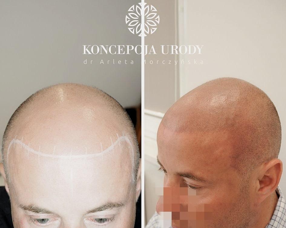 Mikropigmentacja skóry głowy- efekt ogolonych włosów