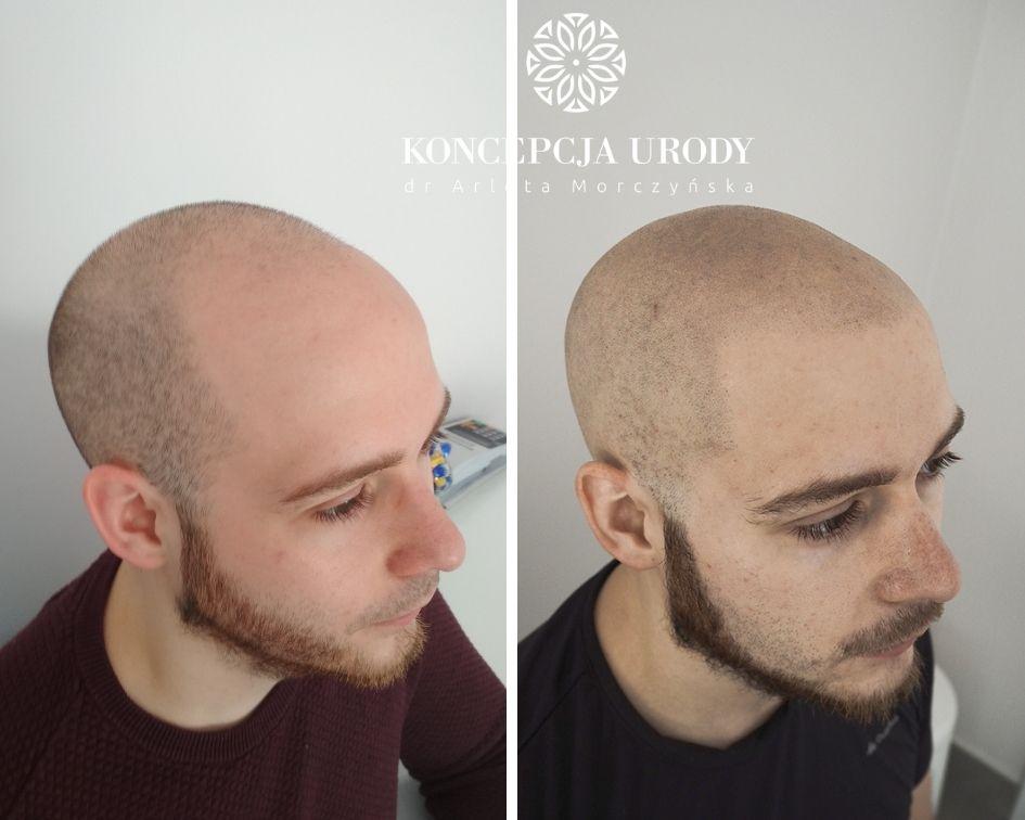 Mikropigmentacja skóry głowy- efekt wygojony po 2 miesiącach