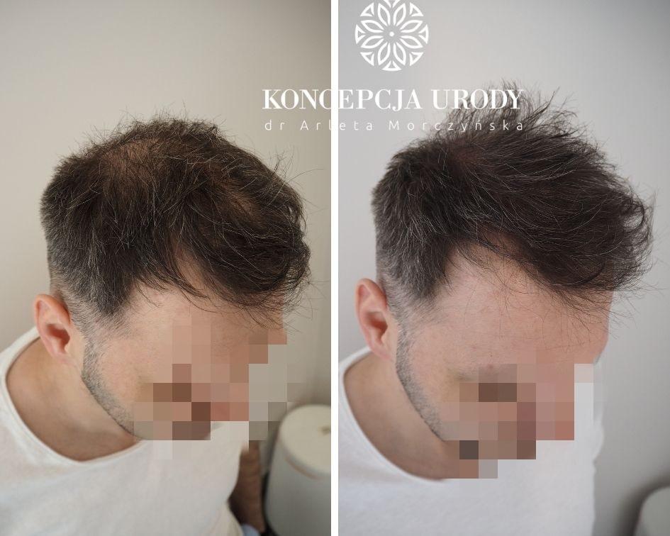 Mikropigmentacja skóry głowy- zagęszczenie włosów po pierwszym zabiegu