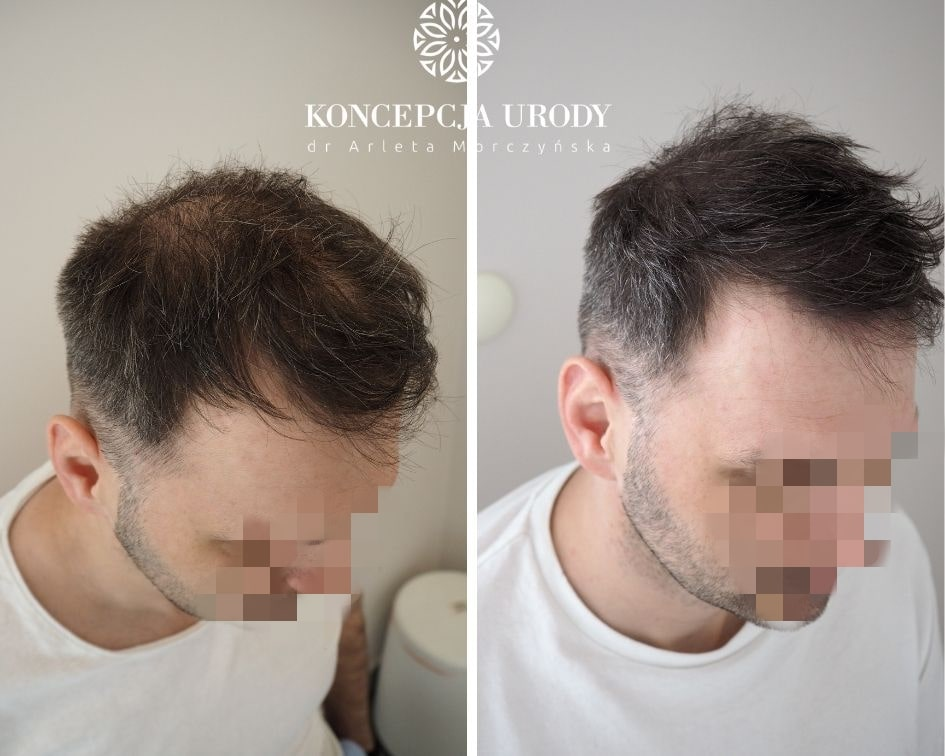 Mikropigmentacja skóry głowy- efekt wygojony po drugim zabiegu