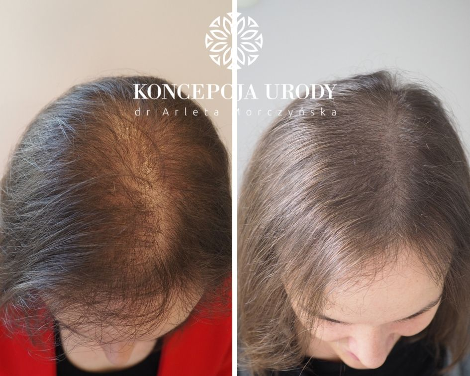 Mikropigmentacja skóry głowy - efekt wygojony po 3 zabigach